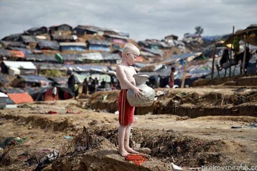 албино Рохинџи дете бегалец во Бангладеш