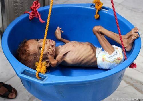 Вкупно 5,2 милиони деца се под ризик од глад во Јемен поради зголемувањето на цените на храната